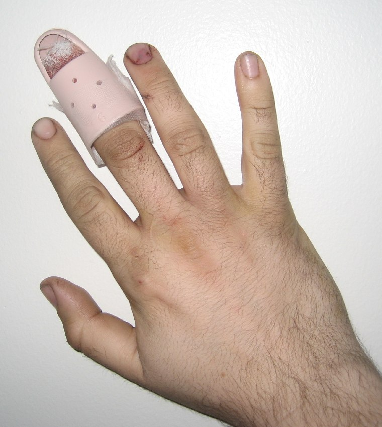 PDR's broked finger